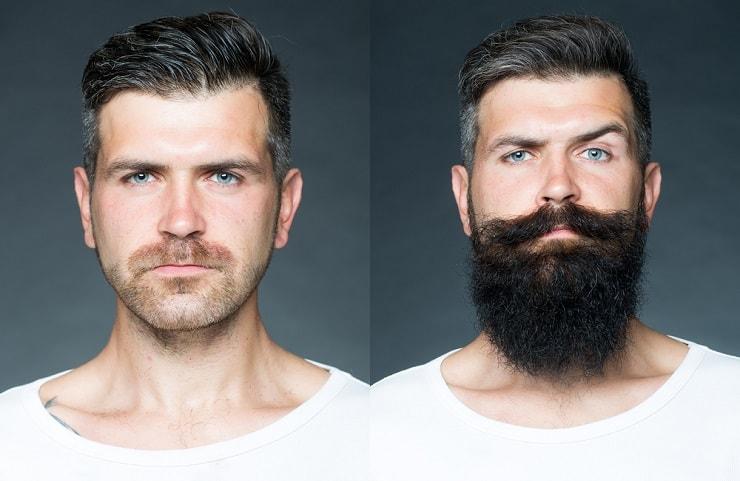 huile ricin barbe avant après
