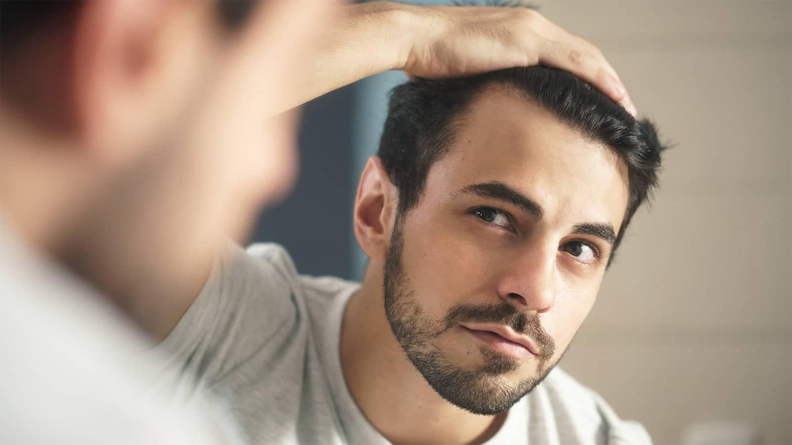 canitie précoce cheveux blancs jeune homme
